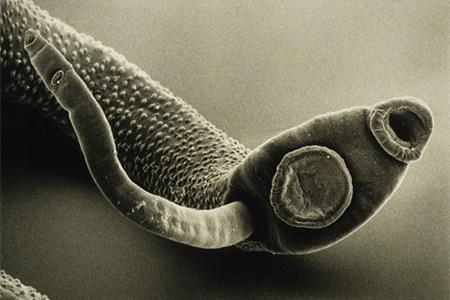 паразиты в организме моча